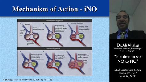 Inhaled Nitric Oxide in ARDS - YouTube