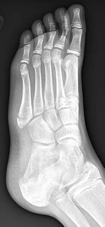 Base of 5th metatarsal apophysis and fracture | Image